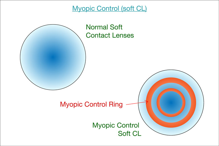 myopic cl diagram